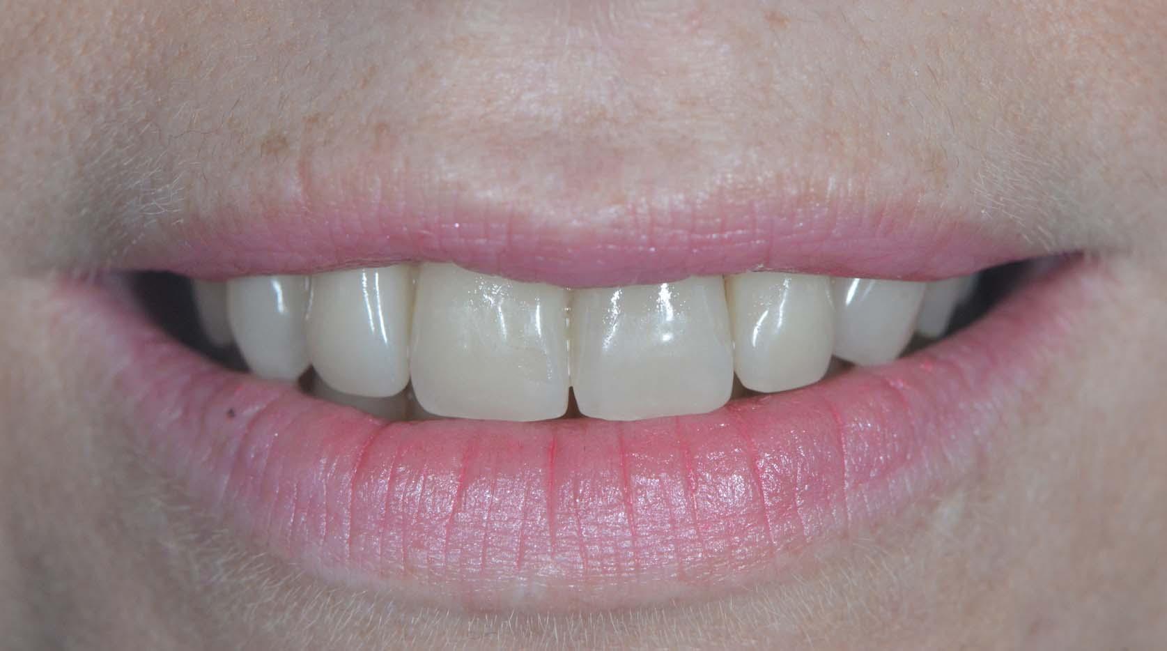 Réalisation dentaires une prothèse réussie par des professionnels de la santé